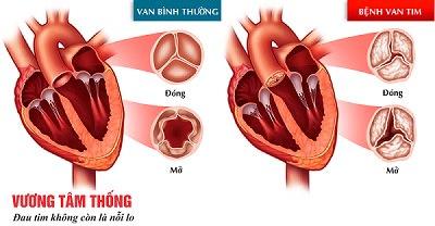 Bệnh van tim gồm có hẹp van tim và hở van tim